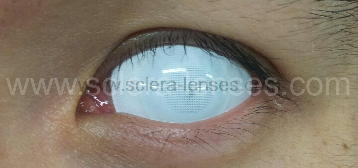 Buy White Zombie Sclera Contact Lenses from Sclera-lenses ...